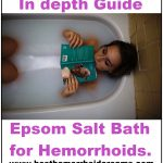 epsom salts bath for hemorrhoids