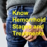 hemorrhoid stages and treatments